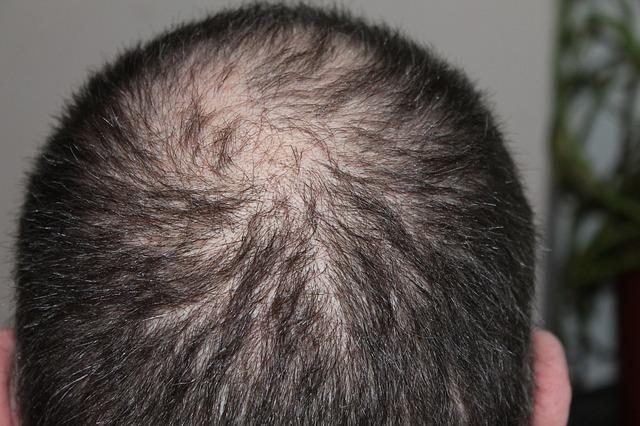 hajhullas-hajgyogyaszat-2