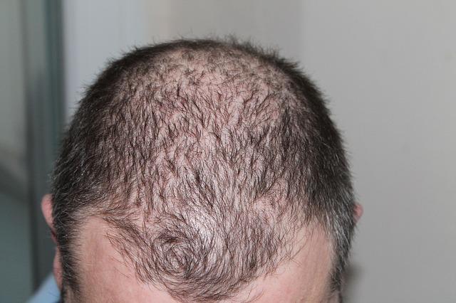 hajhullas-hajgyogyaszat-1